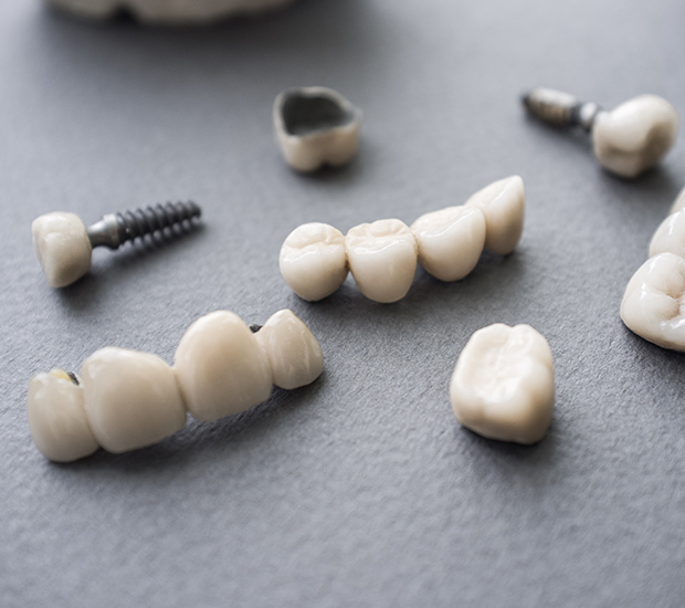 West Covina The Difference Between Dental Implants and Mini Dental Implants
